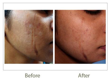 Fractional Co2 Laser Laser Skin Resurfacing Skin Laser
