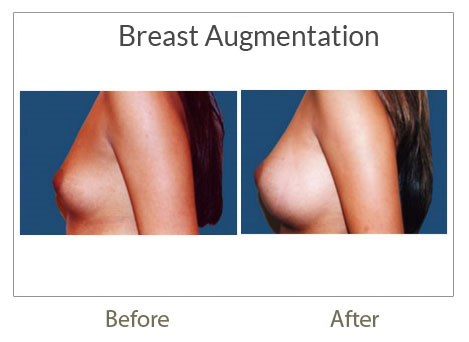 breast augmentation before-after