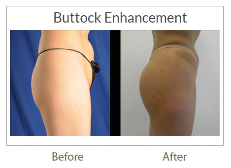 buttock before after surgery