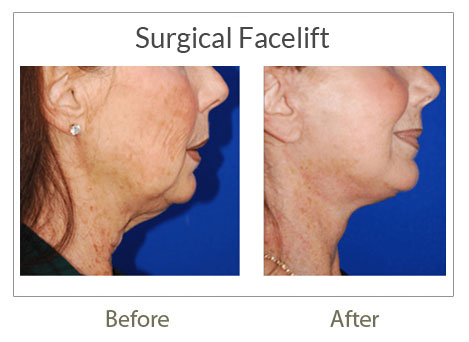 face lift surgery before after