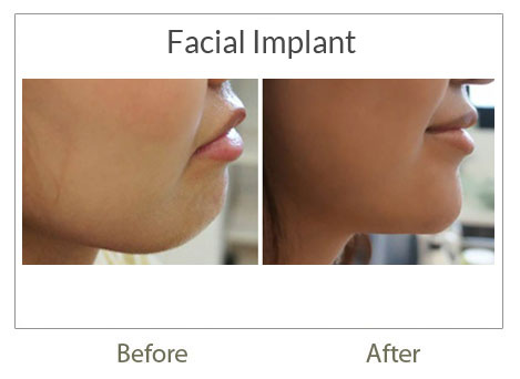 facial implant before-after