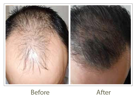 Hair Transplant in Delhi