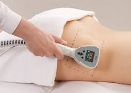 Fat Reduction Treatment in Delhi, Exilis