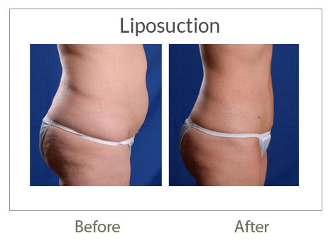 liposuction surgery before-after