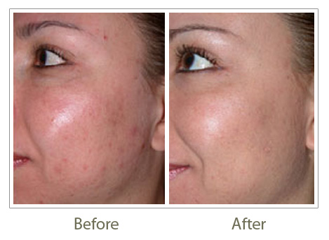 Microdermabrasion Microdermabrasion Treatment