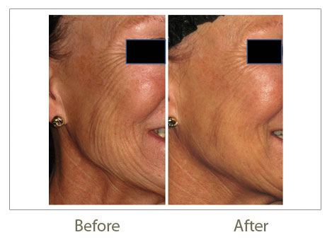 PRP Treatments before after