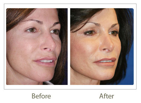 Skin rejuvenation treatment in Delhi
