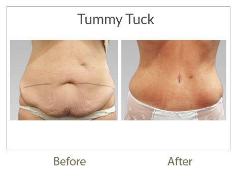 tummy-tuck surgery before-after